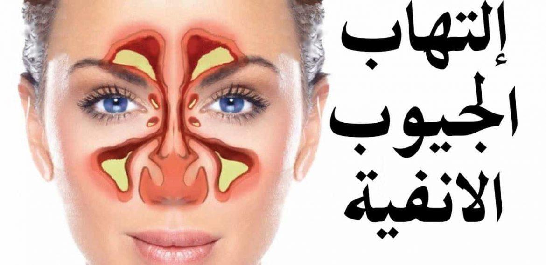 ما علاج التهاب الجيوب الأنفية