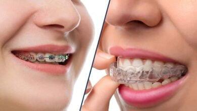 صورة أهمية تقويم الأسنان