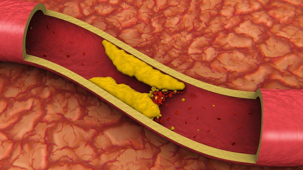 ماذا تعرف عن الكوليسترول