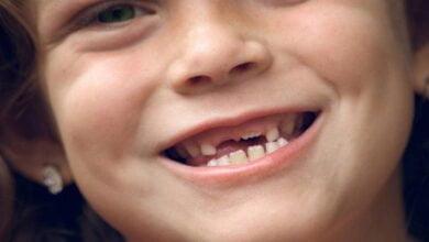 صورة أسنان الأطفال وأهمية العناية بها