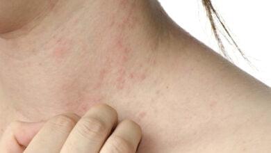 صورة أعراض التهاب الأكزيما والتخلص منها نهائياً