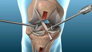 صورة إصابة الرباط الصليبي الأمامي للركبة