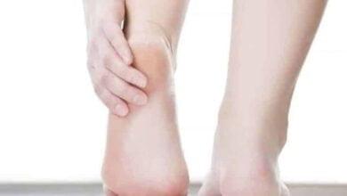 صورة تشقق القدم والعلاج المناسب