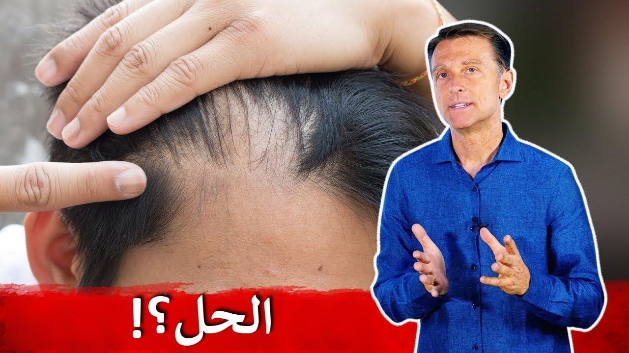 صورة كيف تتجنب تراجع الشعر وعلاجه