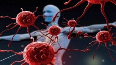 صورة مرض السرطان كيف تتجنب الإصابة به