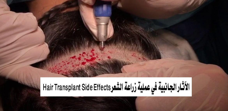 صورة الآثار الجانبية في عملية زراعة الشعر Hair Transplant Side Effects