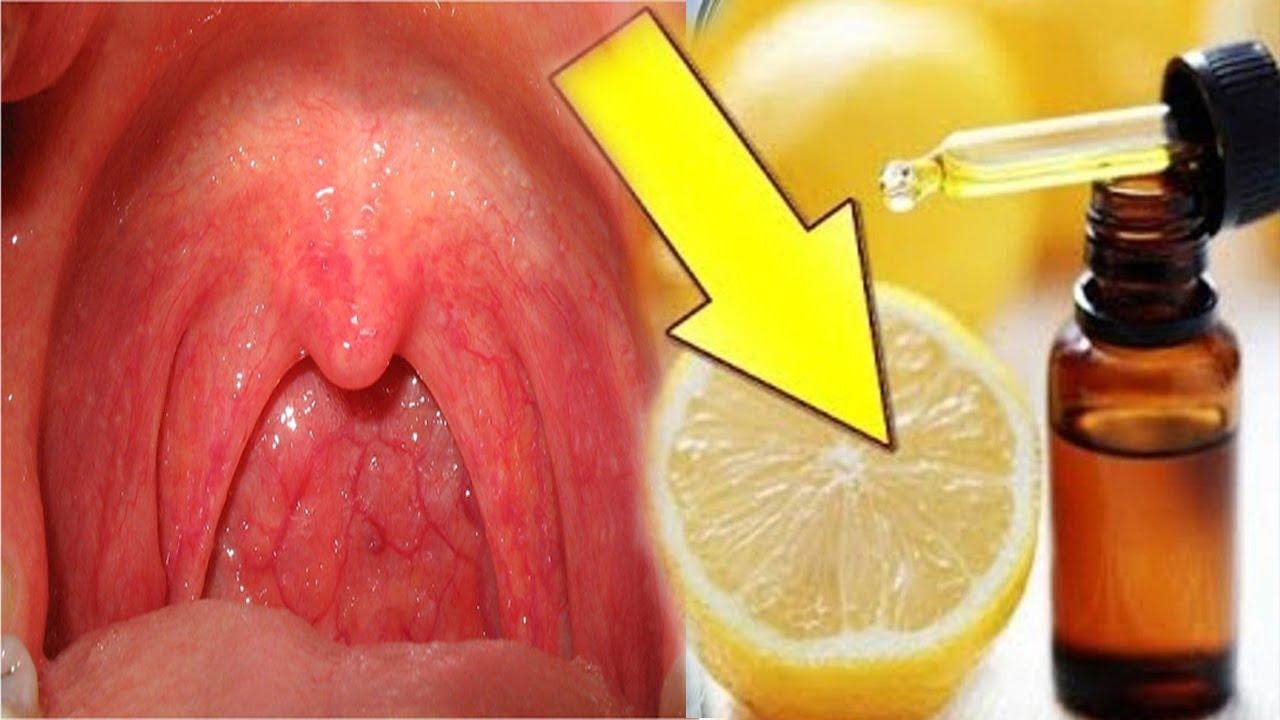 صورة التهاب الحلق وتضخم اللوزتين