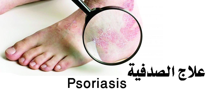 صورة الصدفية وعلاجها Psoriasis