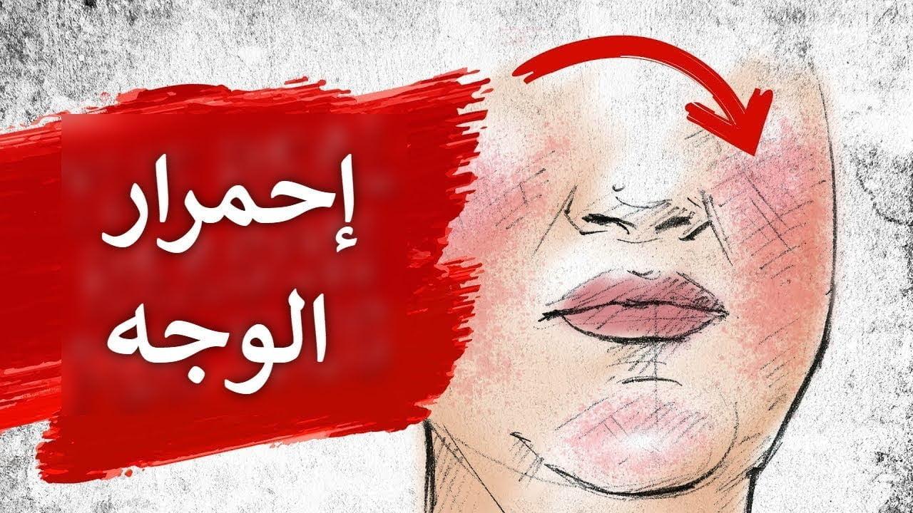 صورة داء الوردية السبب الحقيقي لاحمرار الوجه