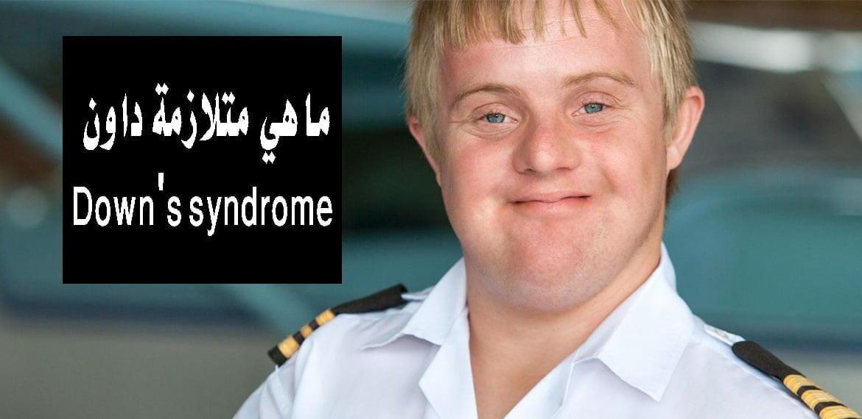 صورة ما هي متلازمة داون Down's syndrome ؟