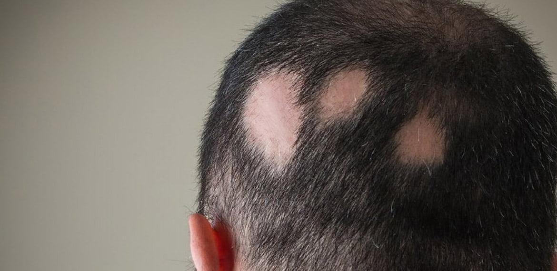 أنواع الثعلبة Alopecia وأسباب وجودها