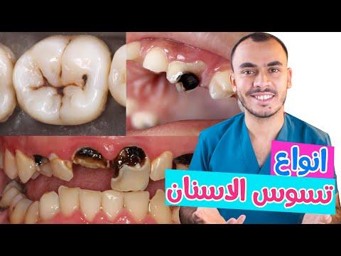 تسوس الأسنان ماكتيوبس أنواع تسوس الأسنان