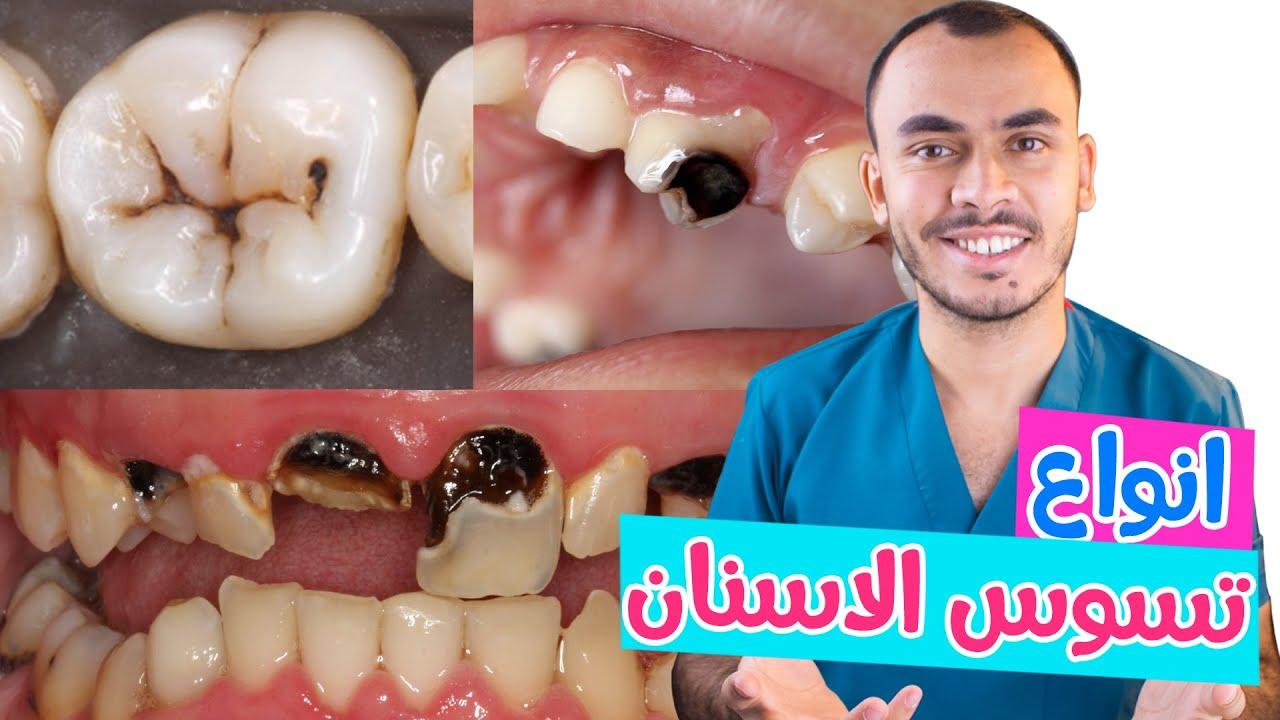 صورة تسوس الأسنان