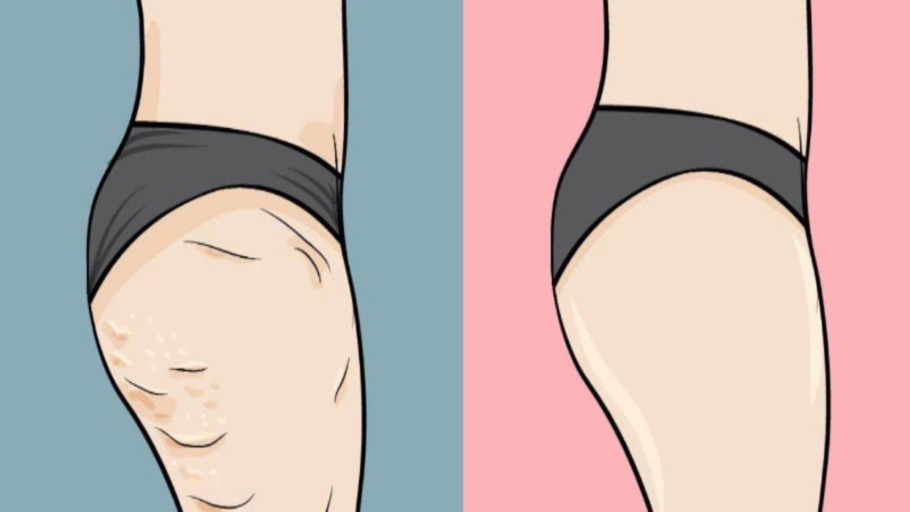 عملية تكسير الدهون