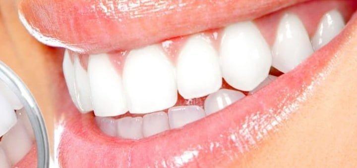 معجون الأسنان لتبييض الأسنان