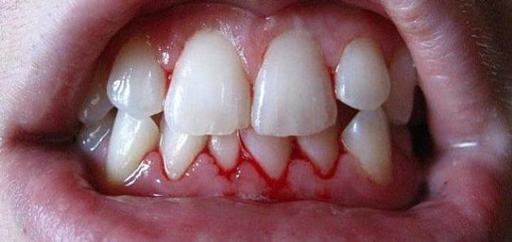 معجون الأسنان لنزيف اللثة