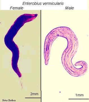 إرفاق صورة Enterobius Vermicularis ( egg) و ( adult )