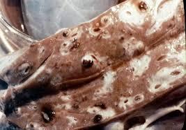 إرفاق صورة Fasciola Hepatica ( egg) و ( adult worm )