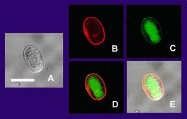 إرفاق صورة Giardia Lamblia ( Cyst) و ( trophozoite )