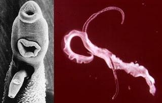 إرفاق صورة Schistosoma Mansoni ( egg) و ( adult)