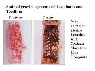 إرفاق صورة Taenia Saginata ( egg) و ( gravid proglottid )