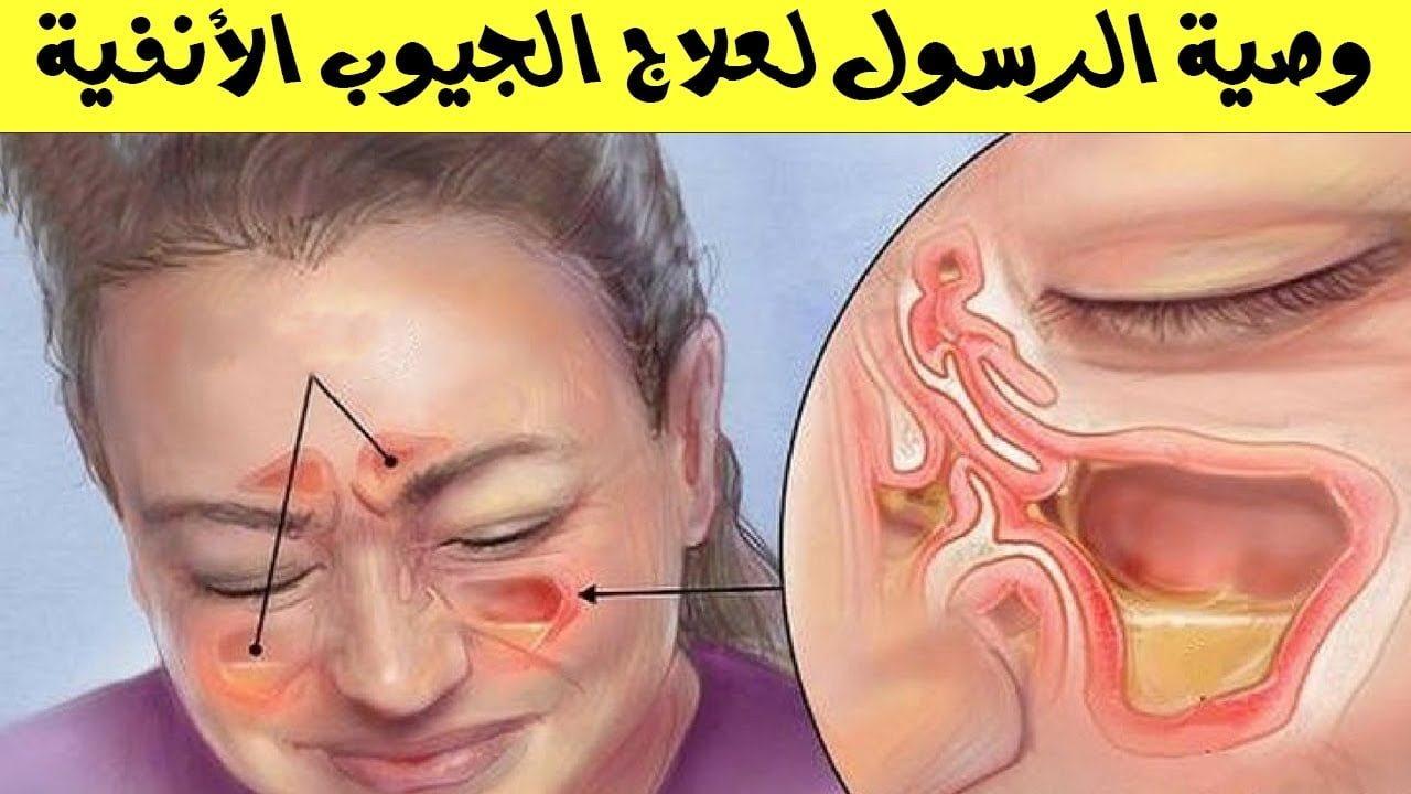 صورة التهاب الجيوب الأنفية