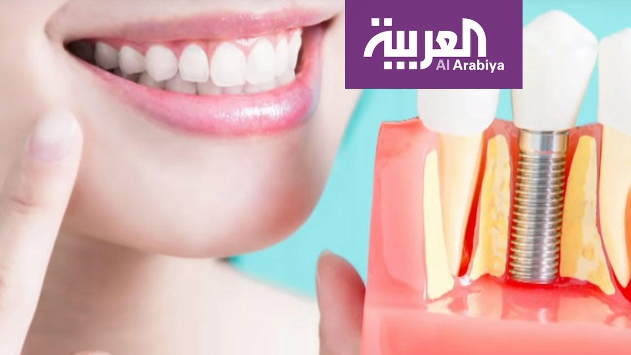 صورة زراعة الأسنان والتقنيات الجديدة