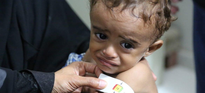 صورة سوء التغذية عند الأطفال