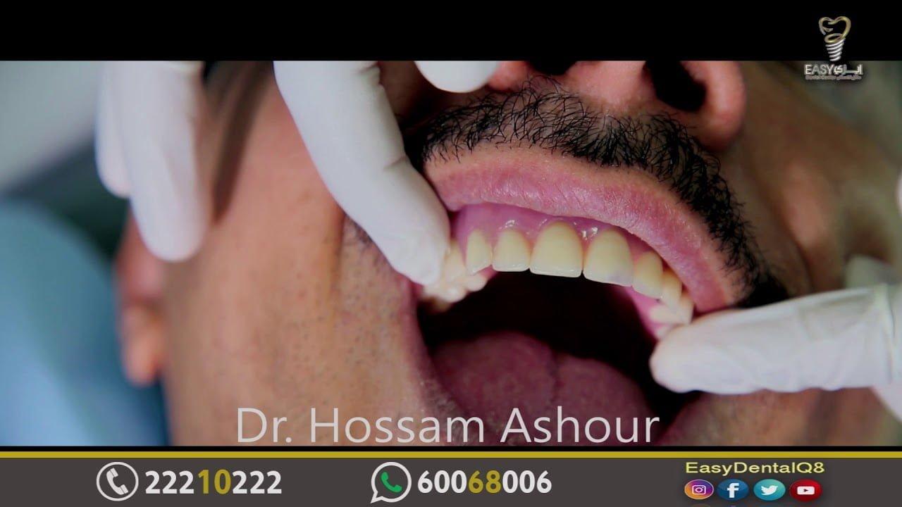 صورة زراعة الأسنان بدون زراعة عظام بطريقة سهلة