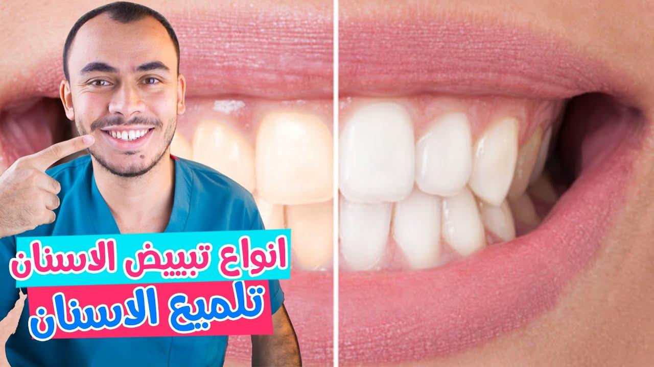 صورة كيف يتم تبييض الأسنان وتنظيف جير الأسنان