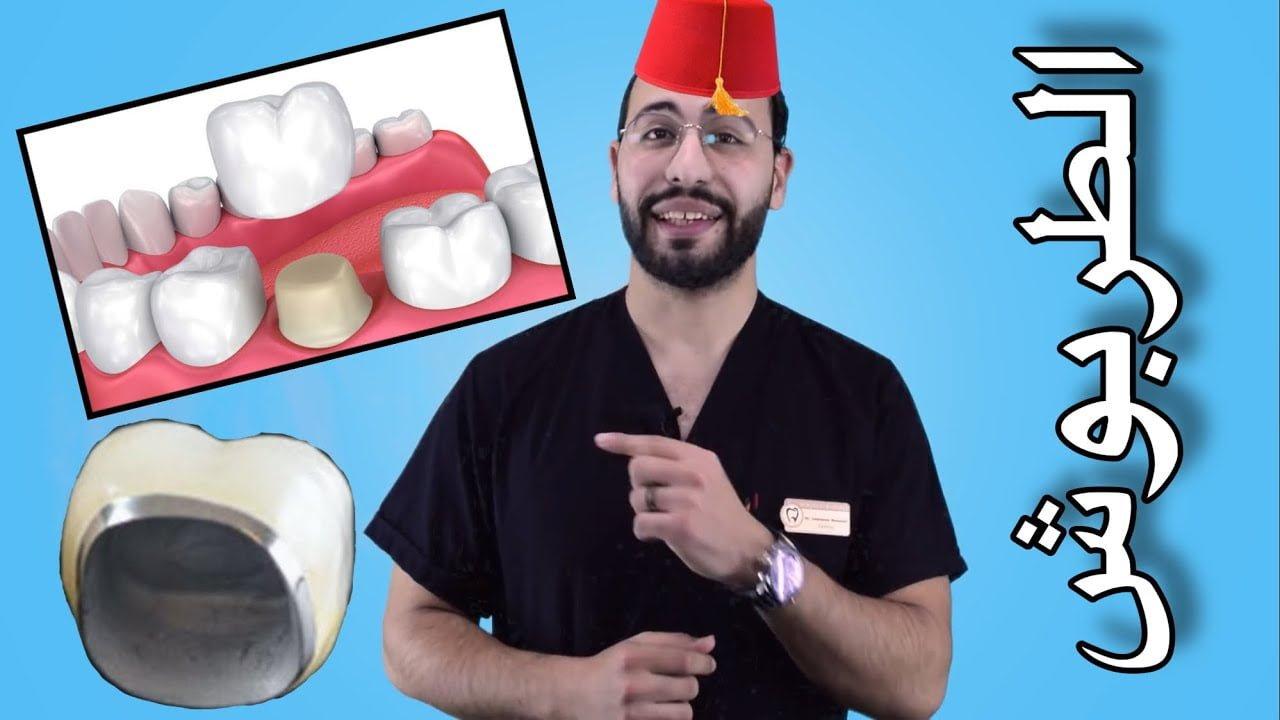 صورة كيف يتم تركيب تلبيس الأسنان والضرس؟