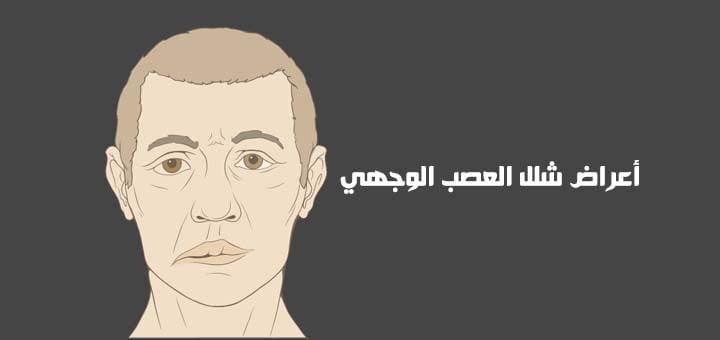 صورة أعراض شلل العصب الوجهي وعلاجه