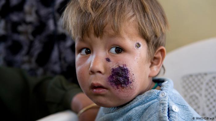 الحمى الصفراء والملاريا