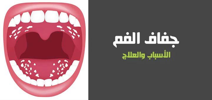 صورة أسباب جفاف الفم وطرق علاجه