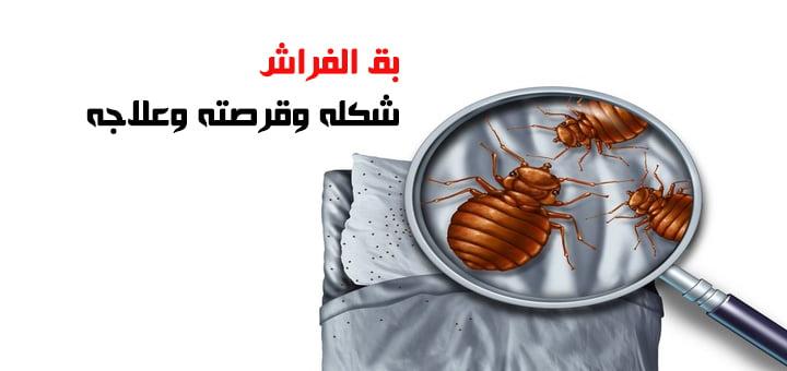 بق الفراش شكله وقرصته وعلاجه
