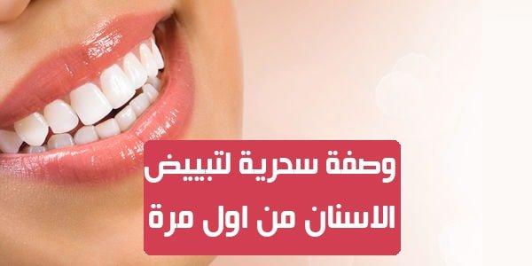 خلطات تبييض الأسنان بالفحم