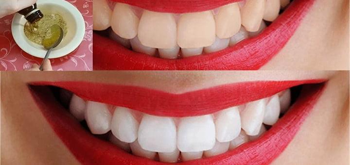 خلطات تبييض الأسنان و 10 طرق سهلة التحضير