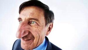 أطول أنف لرجل على قيد الحياة