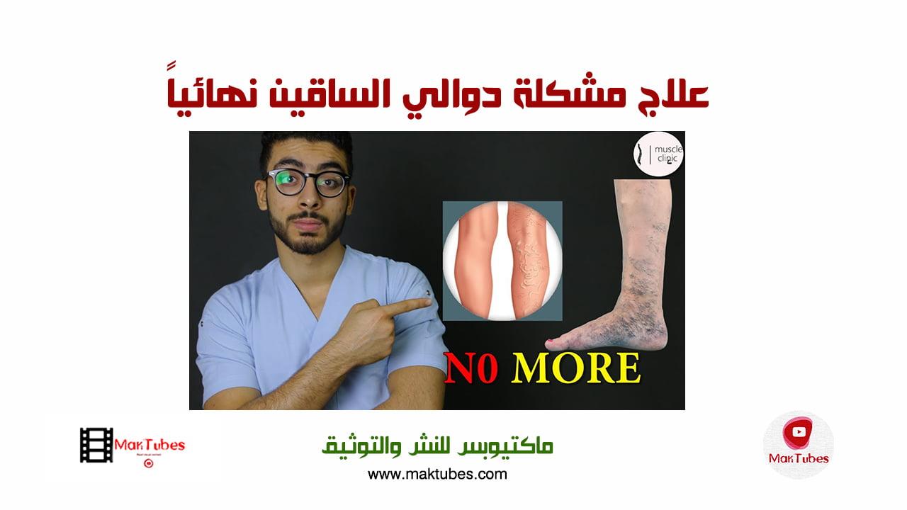 صورة علاج مشكلةدوالي الساقين نهائياً