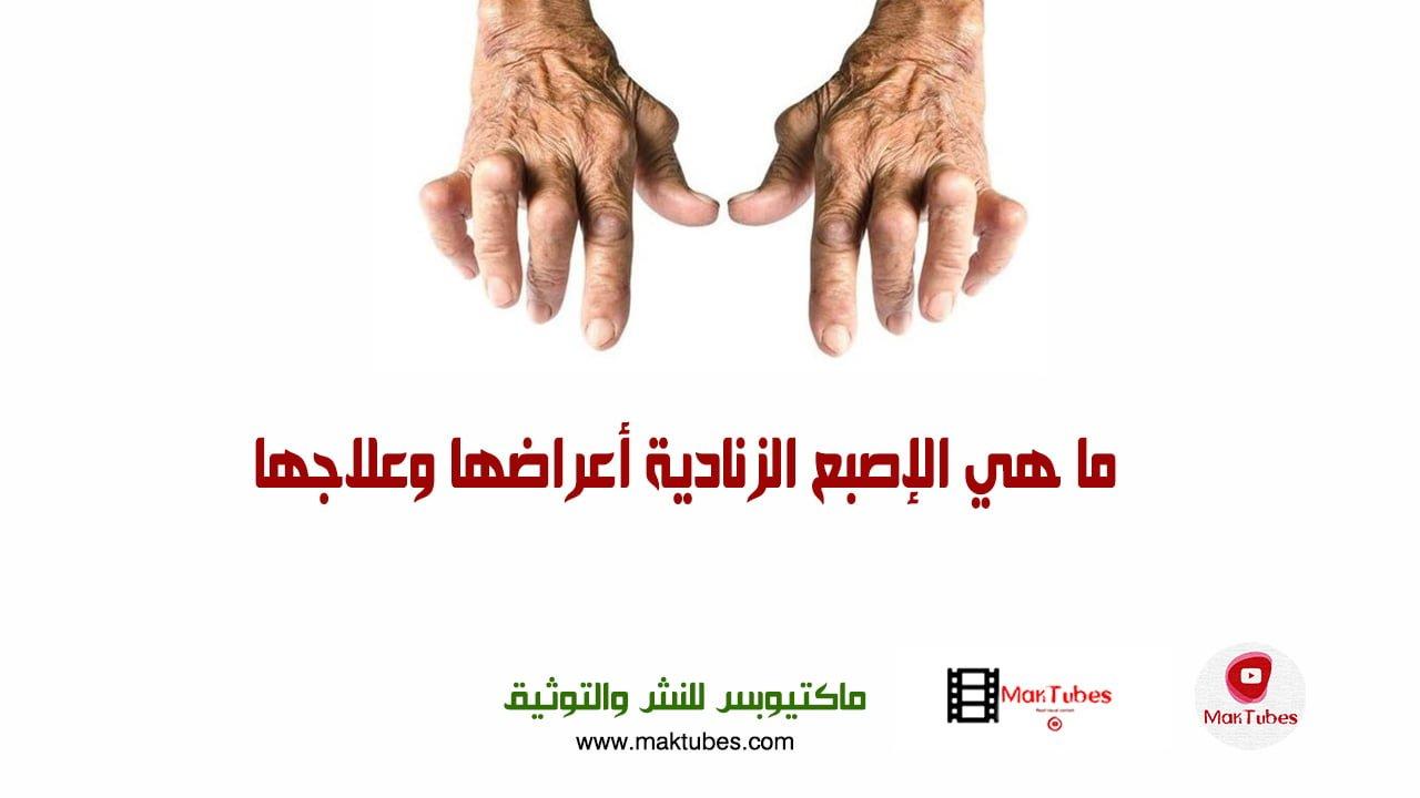صورة ما هي الإصبع الزنادية أعراضها وعلاجها