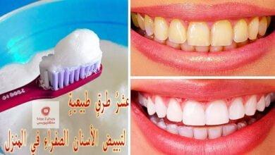 صورة عشرُ طرقٍ طبيعيةٍ لتبييض الأسنانِ الصفراءِ في المنزل