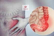 صورة القولون العصبي IBS