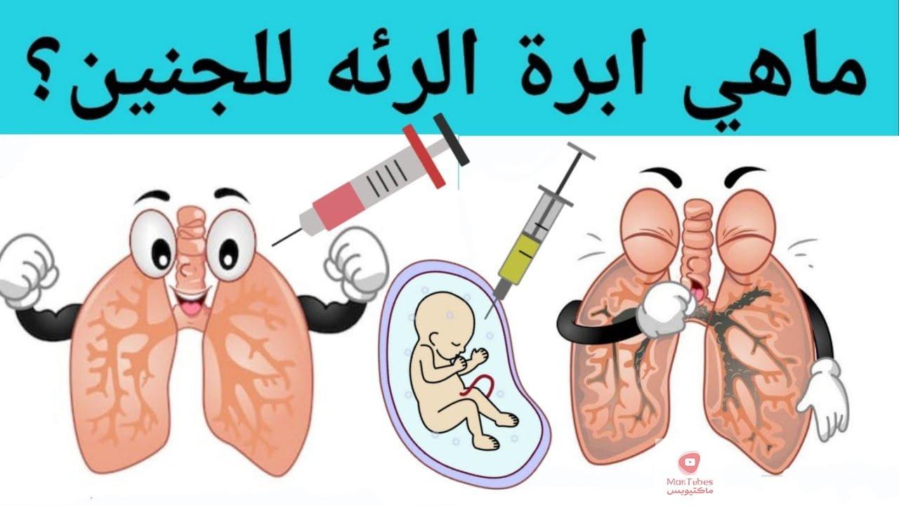 ما هي ابرة الرئة للحامل | ابرة اكتمال الرئة | ما هي ابرة الرئة للجنين