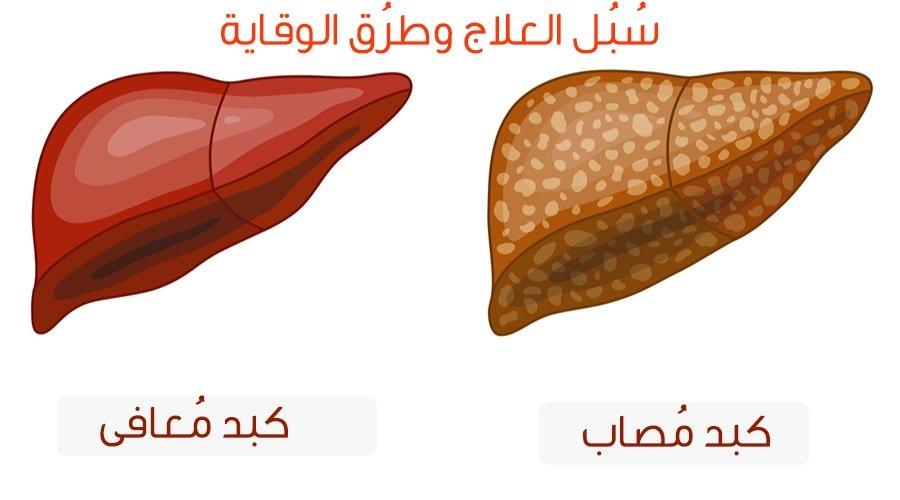 اسباب تشحم الكبد درجات تشحم الكبد علاج تشحم الكبد