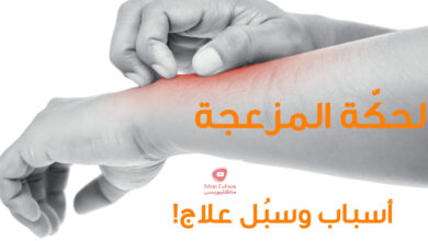 صورة حساسية الجلد ( الارتكاريا ) | اسباب حكة الجسم | انواع الحساسية والاعراض والعلاج