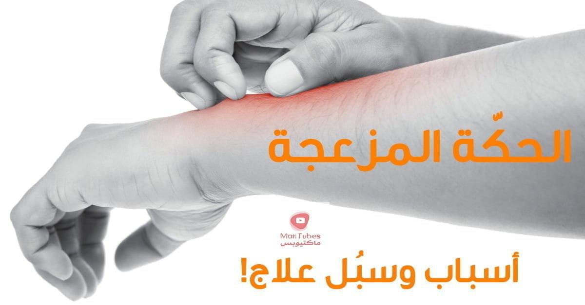حساسية الجلد ( الارتكاريا ) | اسباب حكة الجسم | انواع الحساسية والاعراض والعلاج
