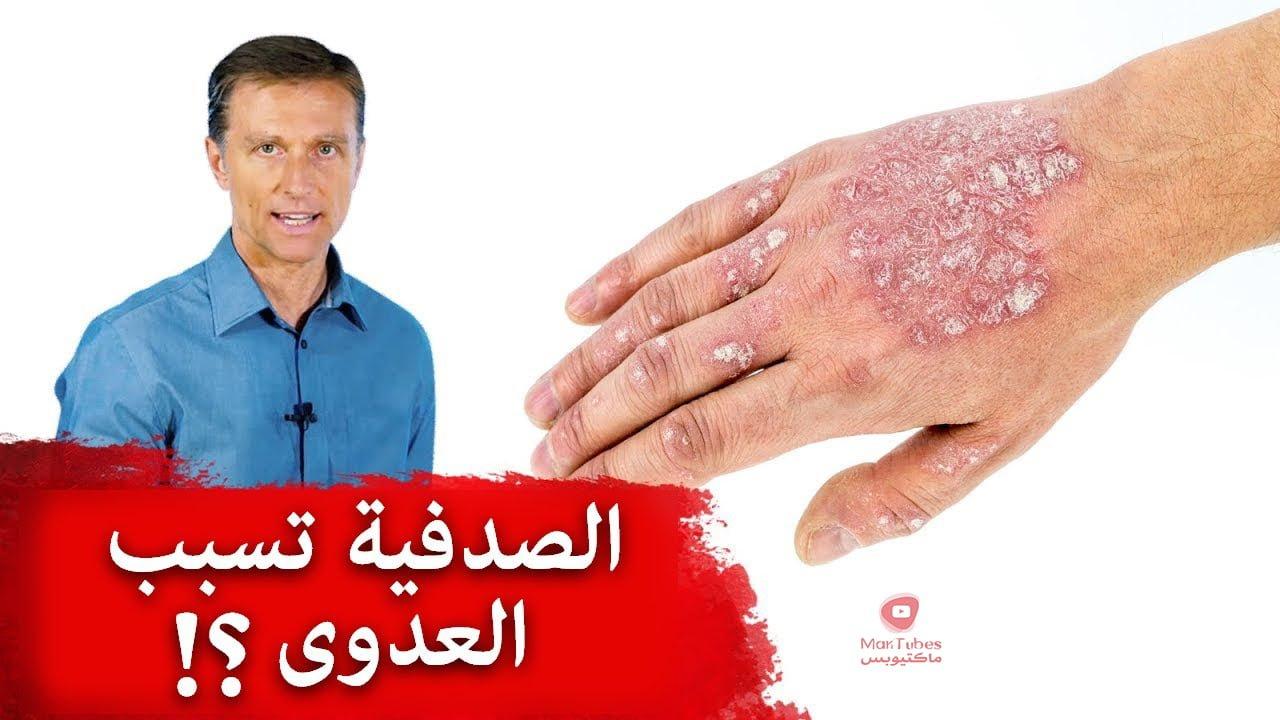 هل الصدفية تسبب العدوى وما علاج الصدفية؟