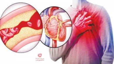 صورة تخثر الدم طريقة لتخفيفه اثناء الصيام واسباب تخثر الدم في الساق والعلاجات المقترحة