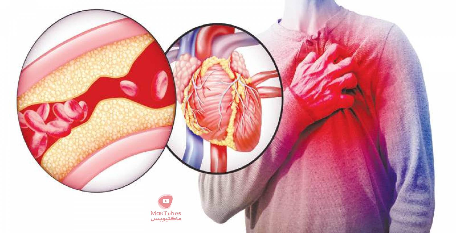 تخثر الدم طريقة لتخفيفه اثناء الصيام واسباب تخثر الدم في الساق والعلاجات المقترحة