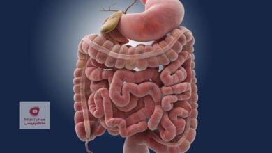 صورة أكثر مشكلات صحية متعلقة بالأمعاء | وما علاقة الصداع النصفي والاكزيما وضباب الدماغ بذلك؟